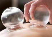 Cupping Therapy Leeds